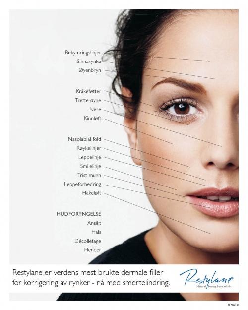 Restylane - områder i ansikt